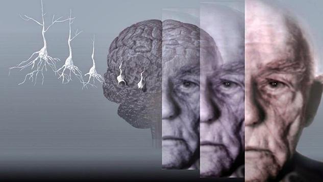Alzheimer hastalığı tip 3 diyabet olabilir